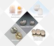 Find Dental Crowns Sutton - Dr. Suril Amin - Local Dentist